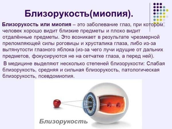 Ирифрин БК глазные капли инструкция по применению, аналоги