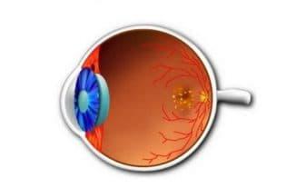 дистрофия сетчатки глаза что это такое профилактика и лечение