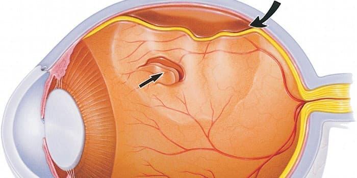 Можно ли вылечить отслоение сетчатки глаза