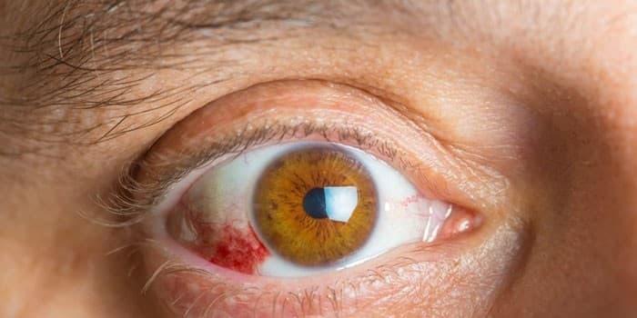 Гипертоническая ангиопатия сетчатки глаза: симптомы, лечение